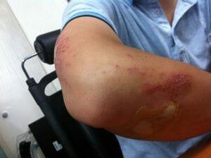 injured on the job